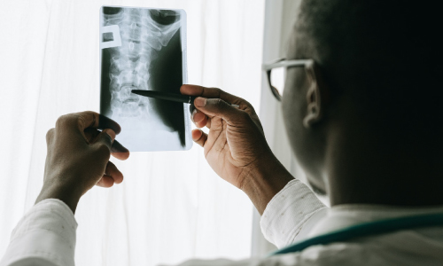 Doctor Holding Up X-Ray